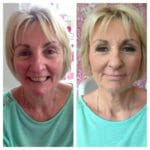 reduce redness at Pinkies salon Kent